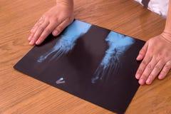 Rayon X du pied du patient sur la table avec les mains du docteur photos stock