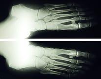 Rayon du pied X image libre de droits
