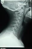 Rayon X humain de cou images stock
