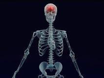 Rayon rouge humain du cerveau X à l'arrière-plan noir Image libre de droits