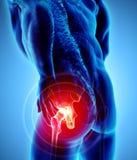 Rayon X squelettique douloureux de hanche, illustration 3D Photographie stock