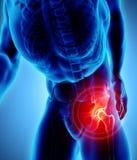Rayon X squelettique douloureux de hanche, illustration 3D Images stock