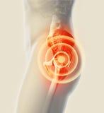 Rayon X squelettique douloureux de hanche, illustration 3D Images libres de droits