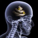 Rayon X squelettique - merde pour des cerveaux illustration de vecteur