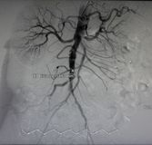 Rayon X d'aorte, récipients abdominaux Images stock