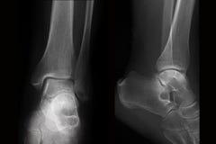 Rayon X de cheville-radiographie dans deux projections Photos stock
