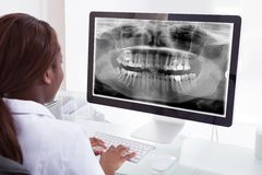 Rayon X de examen de mâchoire de dentiste féminin sur l'ordinateur dans la clinique Image libre de droits