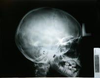 Rayon X de ma tête de jeune frère Photo stock
