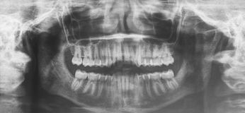 Rayon X de Maxilofacial pour un traitement de dentiste Diagnos d'orthodonties Photos libres de droits