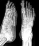 RAYON X de pied Photo libre de droits