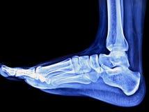 Rayon X de pied Photos libres de droits
