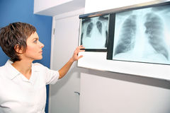 Rayon X de poumon, embolismPE pulmonaire, hypertension pulmonaire, C Photo libre de droits