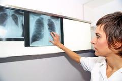 Rayon X de poumon, embolismPE pulmonaire, hypertension pulmonaire, C Images libres de droits
