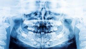 Rayon X dentaire d'enfants avec des dents du ` s de veau Photos stock