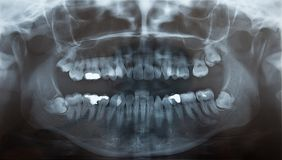 Rayon X des dents de sagesse problématiques Image libre de droits