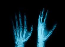 Rayon X des mains Photographie stock libre de droits