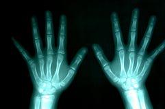Rayon X des mains Image stock