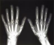 Rayon X des mains humaines Photos libres de droits