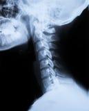 Rayon X du cou et du crâne - vue de côté Image stock