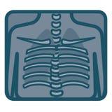 Rayon X humain de poumons Photo libre de droits