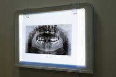 Rayons X de la mâchoire et des dents image libre de droits