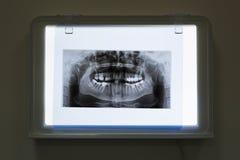 Rayons X de la mâchoire et des dents images stock