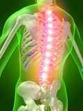 Rückenschmerzen Stockfoto