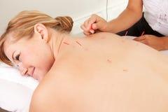 Rückseitige Shu Akupunktur Stockfotos