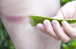 Reacción alérgica después de la mordedura de insecto, estado-primer agudo Fotografía de archivo libre de regalías