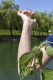 Reacción alérgica de la ortiga tacaña Imagen de archivo