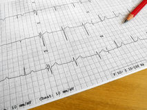 Reading medical ECG chart. A photograph showing a ECG heart beat medic chart of a patient, taken with a red pencil on brown wood table. Information used by royalty free stock photography