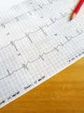 Reading medical ECG chart. A photograph showing a ECG heart beat medic chart of a patient, taken with a red pencil on brown wood table. Information used by royalty free stock images