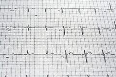 Readout de EKG Imagem de Stock Royalty Free