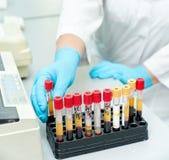 Reageerbuizen met bloed Stock Afbeeldingen