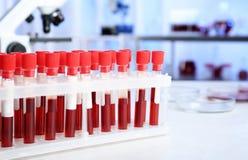 Reageerbuizen met bloedmonsters voor analyse van lijst in laboratorium royalty-vrije stock fotografie
