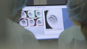 Reakcje, deceleration weryfikacja, profilaktyka zdjęcie wideo