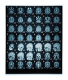 Real brain MRI slide of a young woman. Patient's and clinics names cloned out stock images