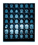 Real brain MRI slide of a young woman. Patient's and clinics names cloned out royalty free stock photography