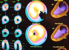Myocardial ischemia nuclear medicine. Real cardiac ischemia revealed after stress myocardial perfusion nuclear test ,there  is  area which is black on the Royalty Free Stock Photography