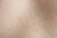 Real human skin Royalty Free Stock Photos