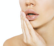 Free Real Lip Bruise After Injection Stock Photography - 35235182
