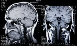 Real MRI Scans of the Head and Brain stock photos