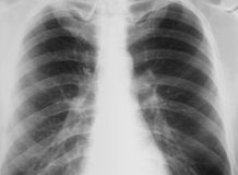 Real-world chest X-ray with symptom of chronic bro Stock Photography