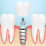 Realistic Healthy Teeth And Dental Implant. Installation Of Dental Implant With All Parts Crown, Abutment, royalty free illustration