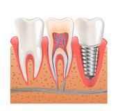 Realistic Healthy Teeth Structure Dental Implant Stock Photos