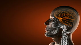 Realistic human brain radiography scan Royalty Free Stock Photo
