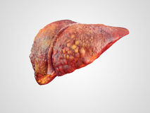 Realistic illustration of cirrhosis of human liver. Isolated on white stock image