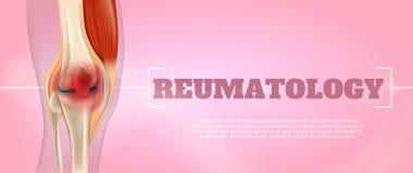 Realistic Illustration Reumatology Medicine in 3d vector illustration