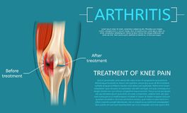 Realistic Illustration Treatment of Knee Pain. Medical Benefit Demonstrating Structure Knee Before and After Arthritis Treatment Detailed Structure Leg Joint stock illustration