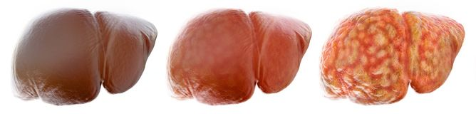 Free Realistic Stages Of A Fatty Liver - 3D Rendering Stock Photos - 128934943